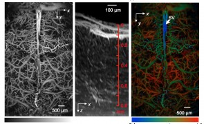 Fast functional photoacoustic microscopy of the mouse brain