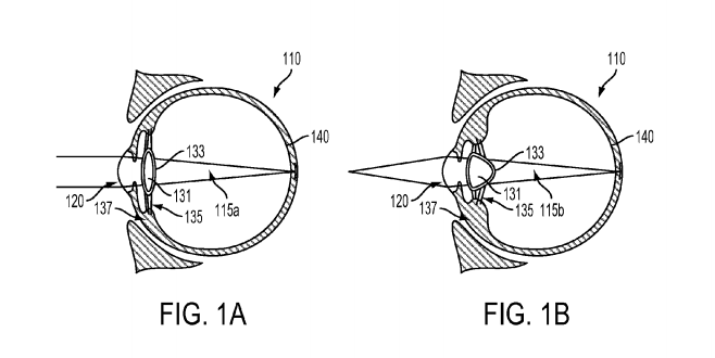 Google files patent for Cyborg Eye Lenses that can be injected into Eye Balls