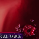 """Gene Editing Tool """"CRISPR Cas9"""" paves way for Sickle Cell Cure"""