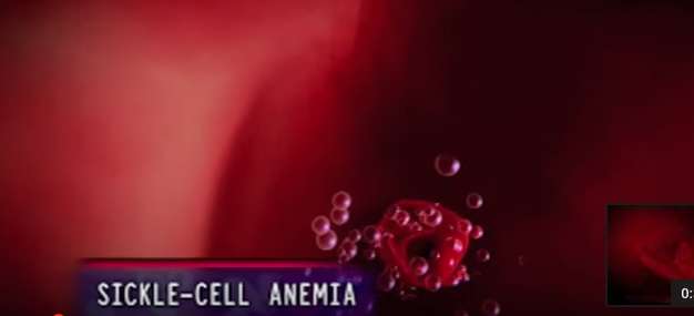 "Gene Editing Tool ""CRISPR Cas9"" paves way for Sickle Cell Cure"