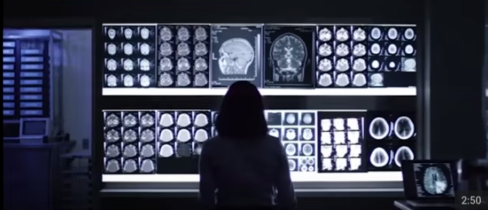 Eyes of Watson – Cognitive Computing & Radiology for Heart Disease
