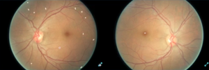 IBM uses Deep Learning for Spotting Diabetic Retinopathy