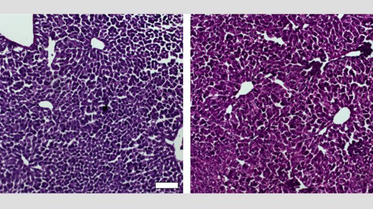 CRISPR successfully lowers Cholesterol in Mice